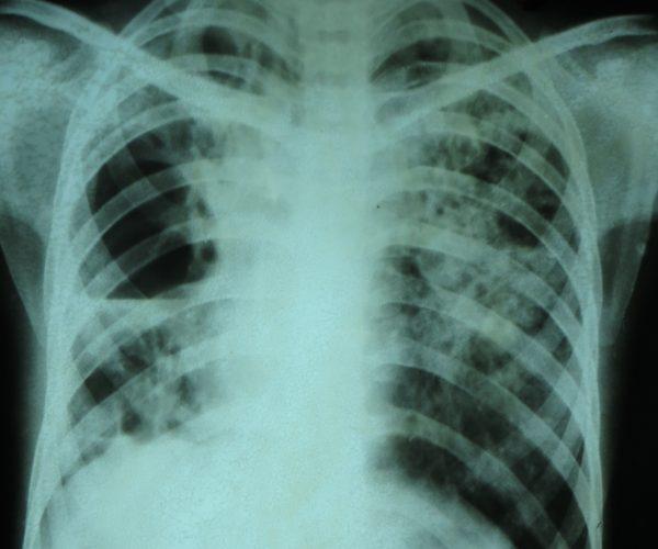 Röntgenthorax mit Tuberkulose - Foto: Dr. Sohn