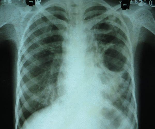 Röntgen-Thorax mit Kaverne bei Tuberkulose Aufnahme: Dr. Sohn